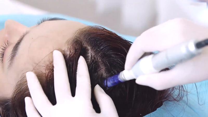 Điều trị rụng tóc hói đầu công nghệ tế bào gốc