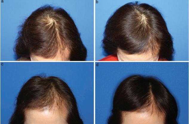 Điểm nổi bật khi điều trị rụng tóc – kích thích mọc tóc bằng tế bào gốc