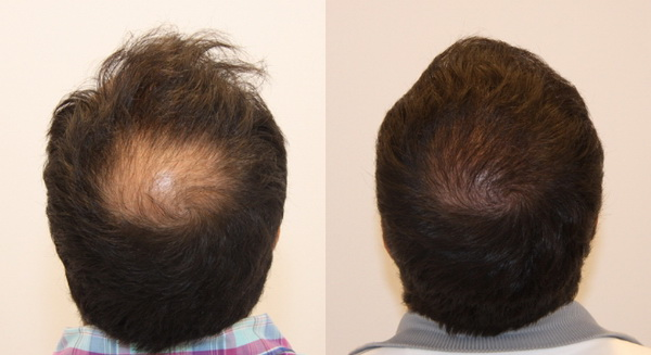 Điều trị rụng tóc hói đầu công nghệ tế bào gốc hiệu quả