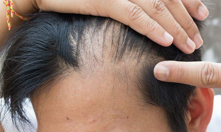 Rụng tóc bất thường là gì? Dấu hiệu và nguyên nhân gây ra tình trạng rụng tóc bất thường