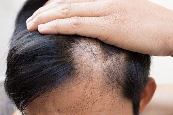 Rụng tóc bất thường là gì